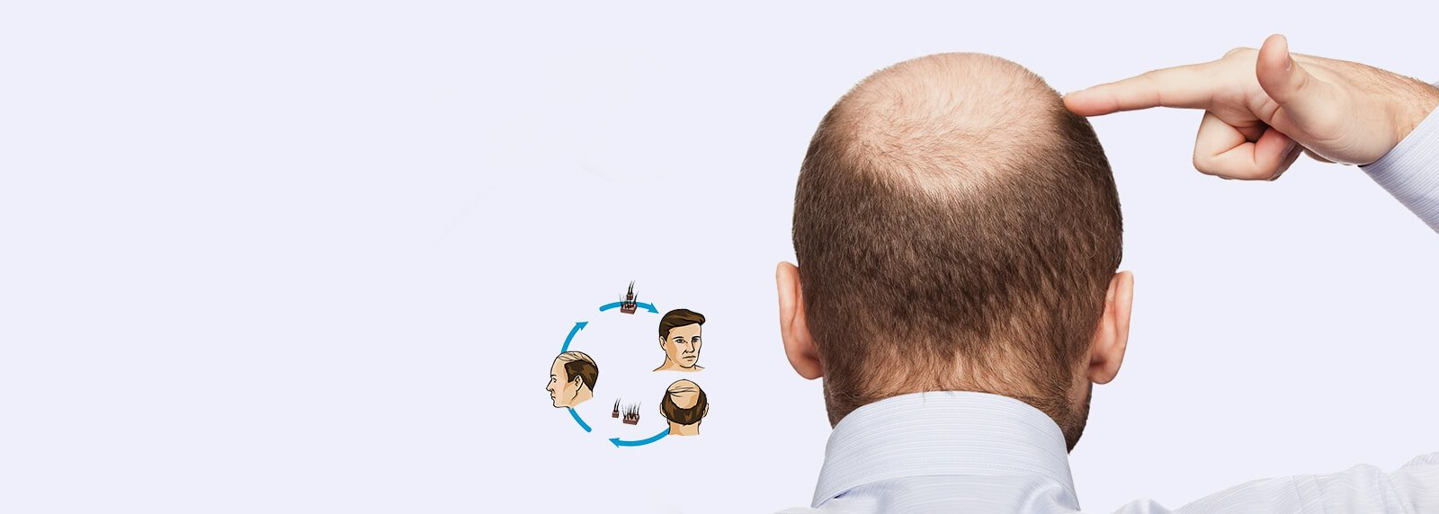 hair loss clinic in delhi