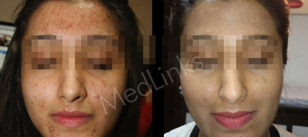 acne-before-after-1-b