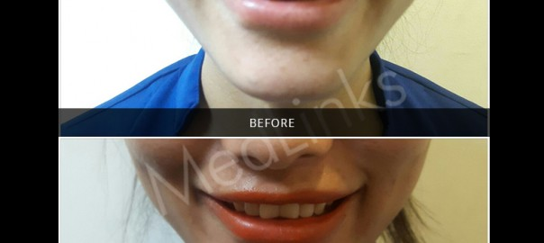 lip-enhancement-before-after-1