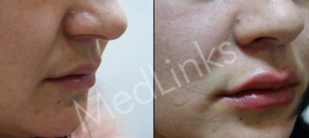 lip-enhancement-before-after-3