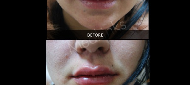 lip-enhancement-before-after-4
