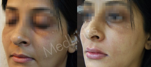 lip-enhancement-before-after-5