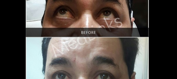 skin-tightening-before-after-13