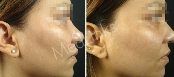 skin-tightening-before-after-10