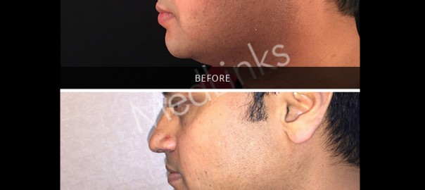 skin-tightening-before-after-9