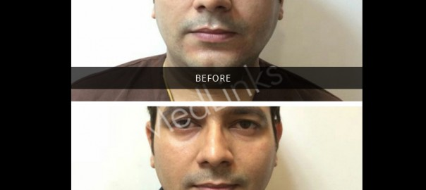skin-tightening-before-after-8