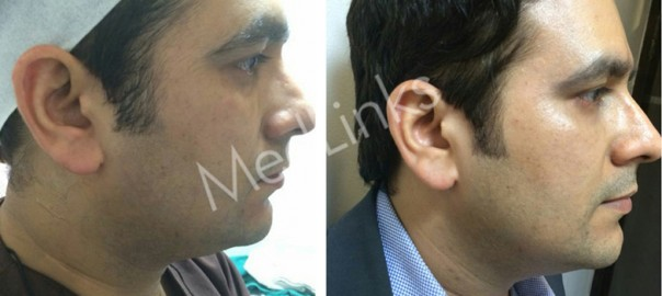 skin-tightening-before-after-7