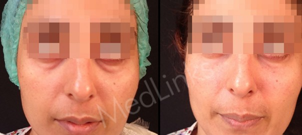 skin-rejuvenation-before-after