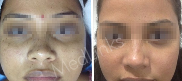 skin-whitening-before-after-2
