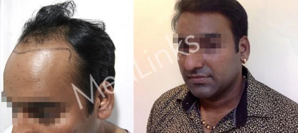 hair-transplant-lg11