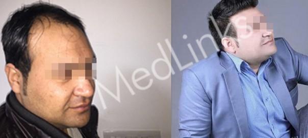 hair-transplant-lg2