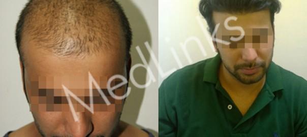 hair-transplant-lg4