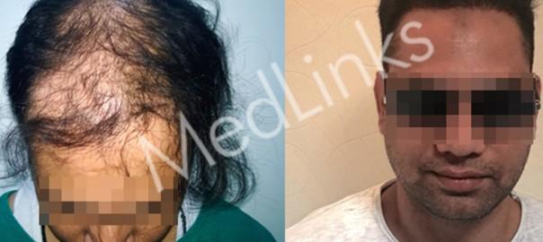 hair-transplant-lg5