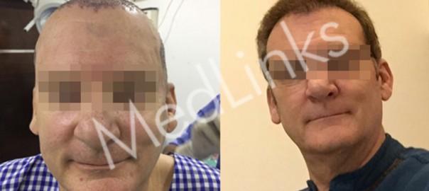 hair-transplant-lg6