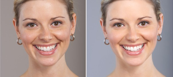 skin whitening treatment cost