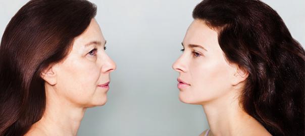 skin lifting treatment
