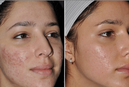 acne-scars-treatment-before-after