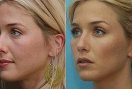 chik-enhancement-treatment-before-after