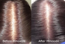 micro-minox-before-after