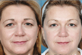 non-surgical-treatment-before-after
