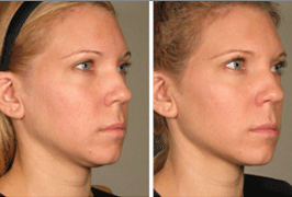 skin-tightning-treatment-before-after