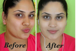 skin-whitening-treatment-before-after