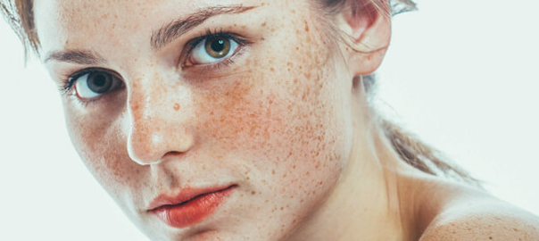 Say Hello to Flawless Skin with Freckles Removal Treatment