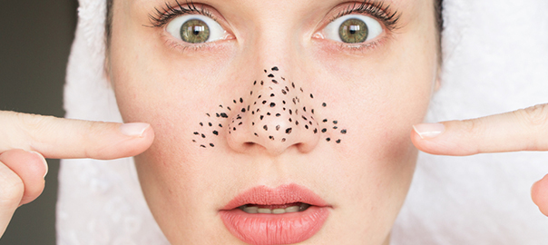 How to Get Rid of Stubborn Blackheads - MedLinks Aesthetics